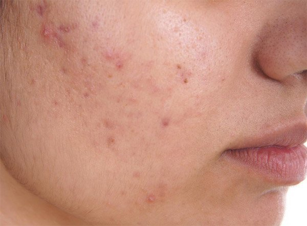 Tired Liver Can Upset Your Skin